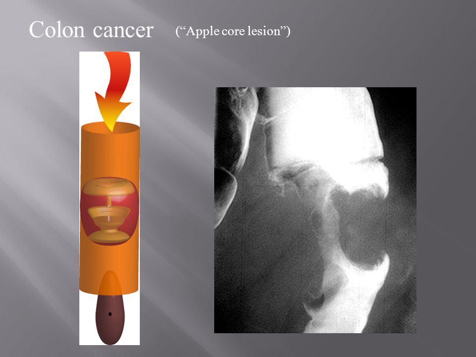 Colon cancer ( Apple core lesion )