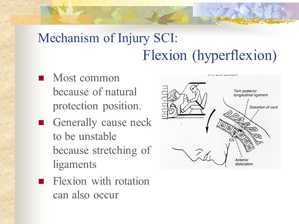 Mechanism of Injury SCI: Flexion (hyperflexion)