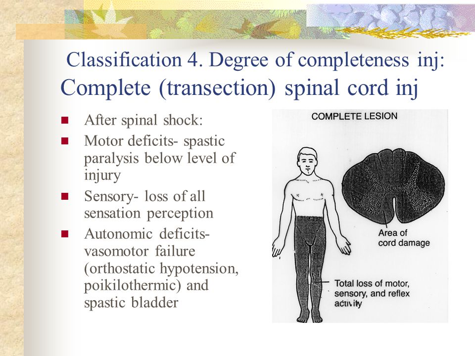 Classification 4. Degree of completeness inj: Complete (transection) spinal cord inj