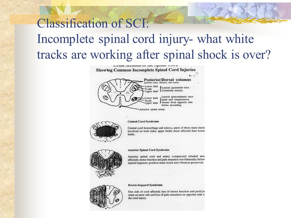 Classification of SCI: Incomplete spinal cord injury- what white tracks are working after spinal shock is over