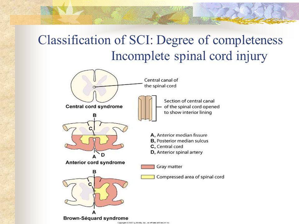 Classification of SCI: Degree of completeness Incomplete spinal cord injury