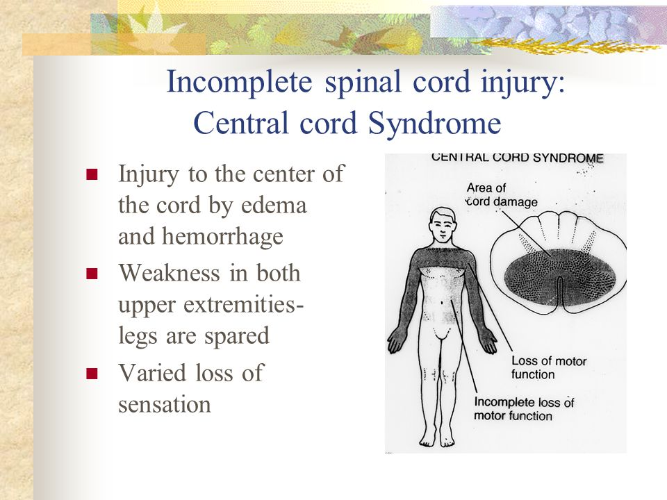 Incomplete spinal cord injury: Central cord Syndrome