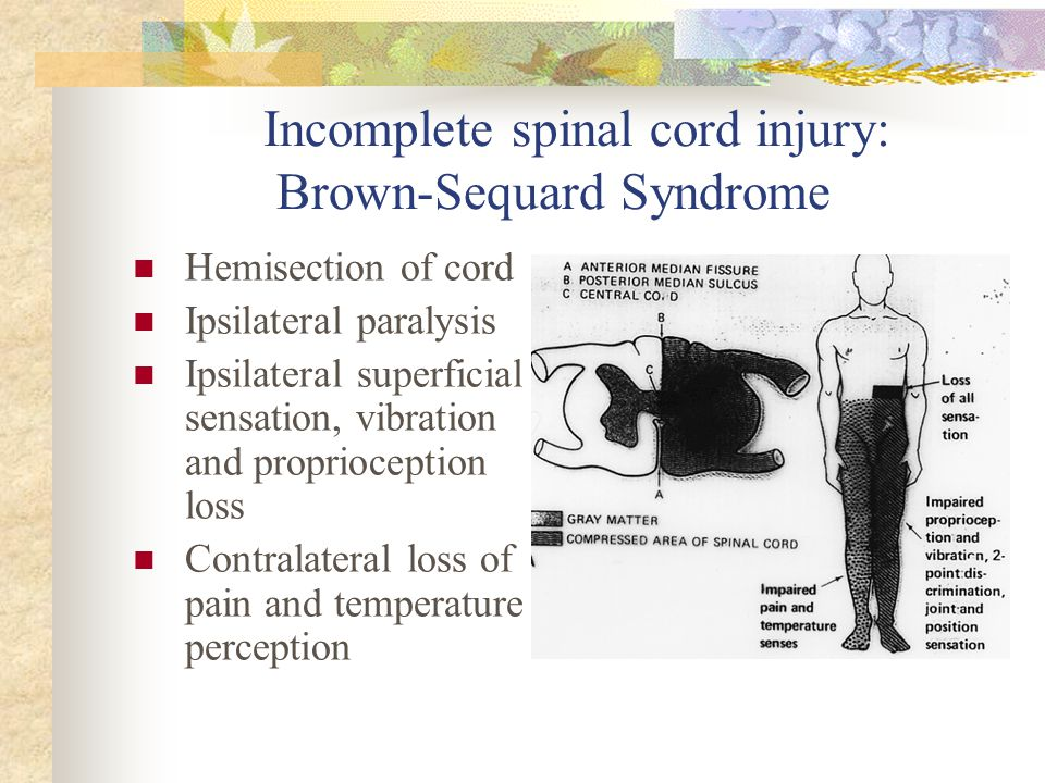 Incomplete spinal cord injury: Brown-Sequard Syndrome