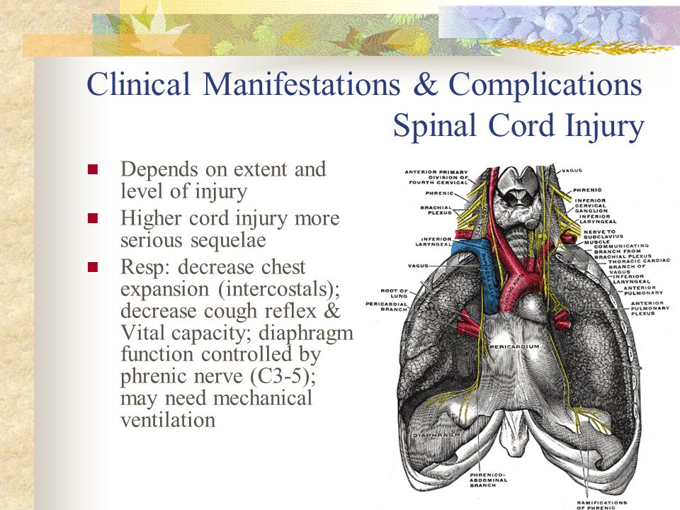 Clinical Manifestations & Complications Spinal Cord Injury