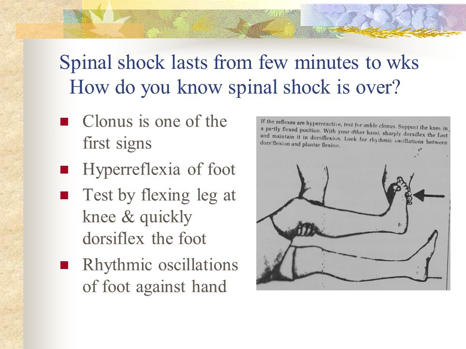 Spinal shock lasts from few minutes to wks How do you know spinal shock is over