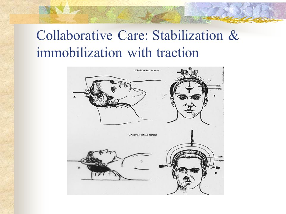 Collaborative Care: Stabilization & immobilization with traction