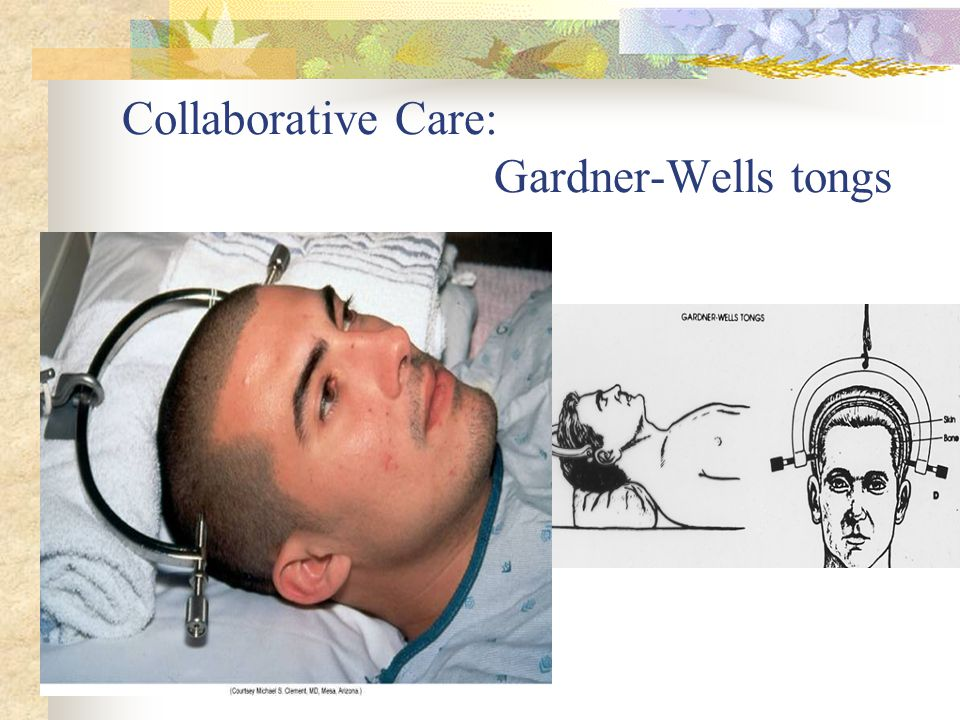 Collaborative Care: Gardner-Wells tongs