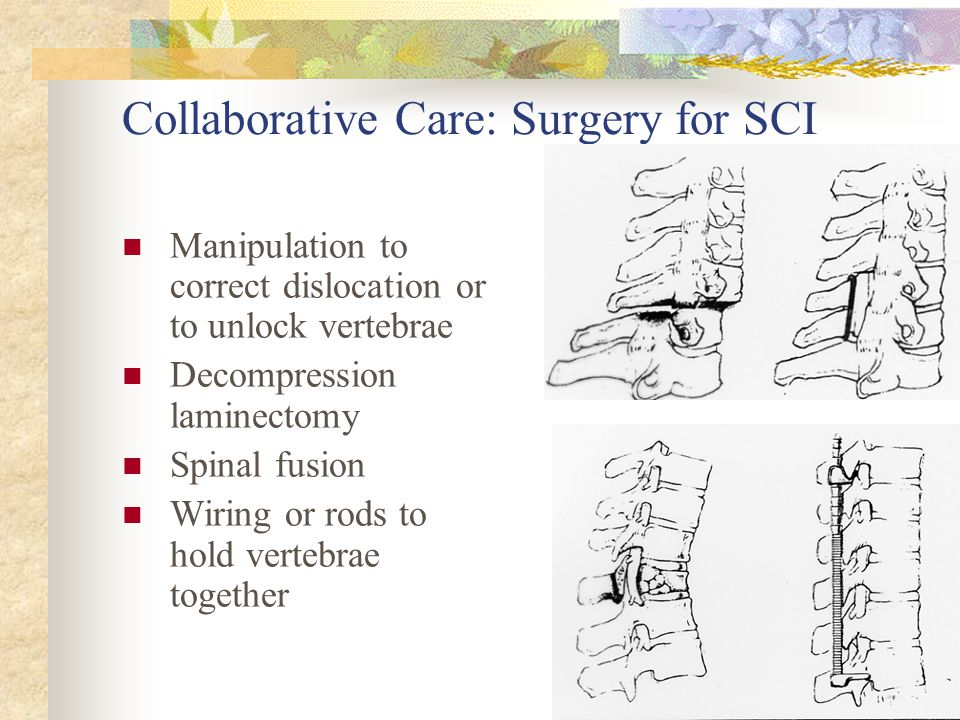 Collaborative Care: Surgery for SCI