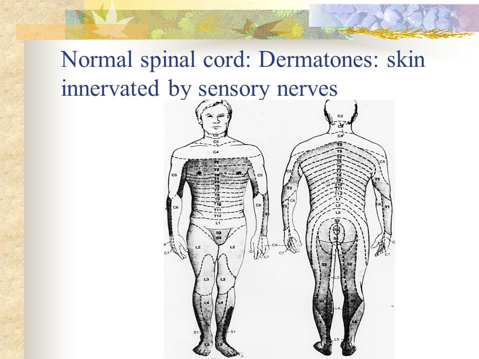 Normal spinal cord: Dermatones: skin innervated by sensory nerves
