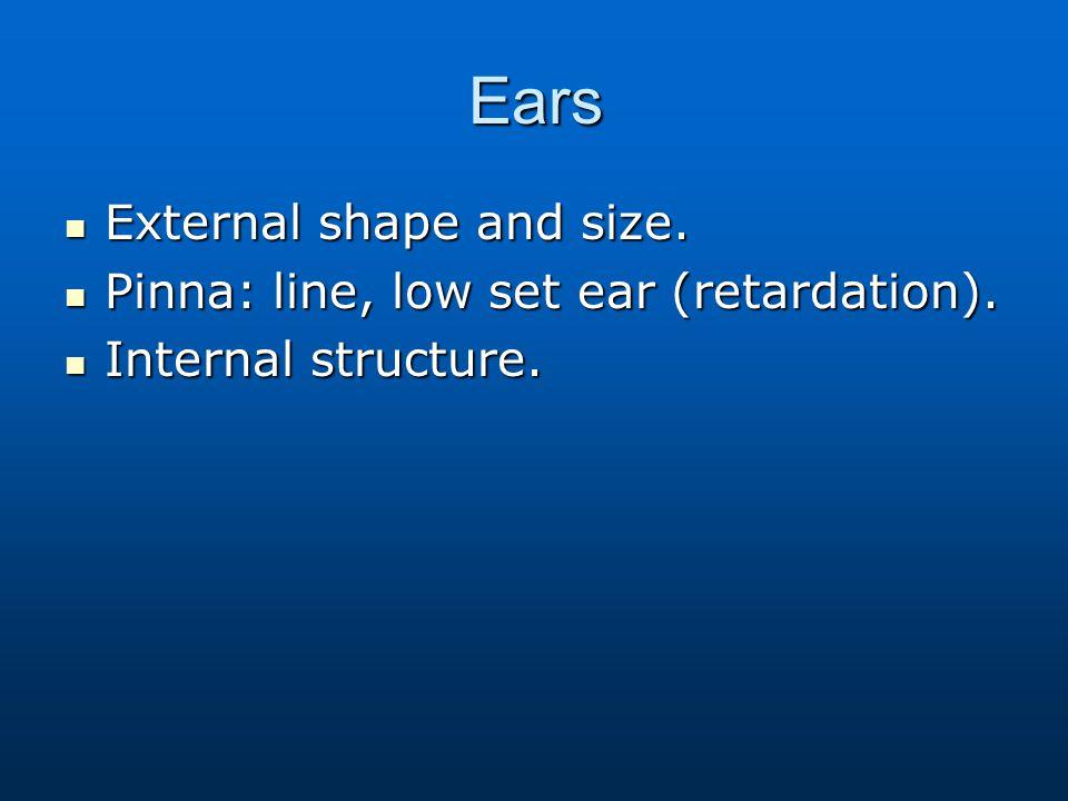 Ears External shape and size. Pinna: line, low set ear (retardation).