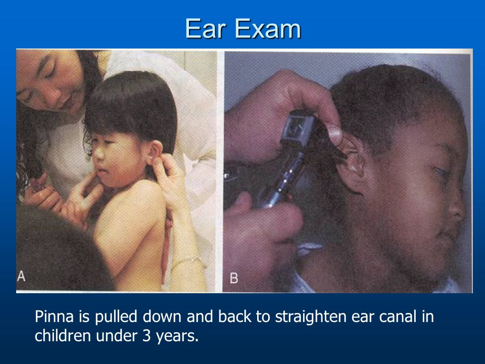 Ear Exam Pinna is pulled down and back to straighten ear canal in