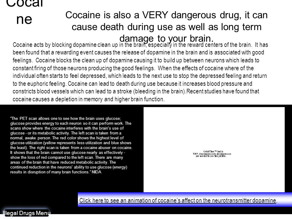 Cocaine Cocaine is also a VERY dangerous drug, it can cause death during use as well as long term damage to your brain.
