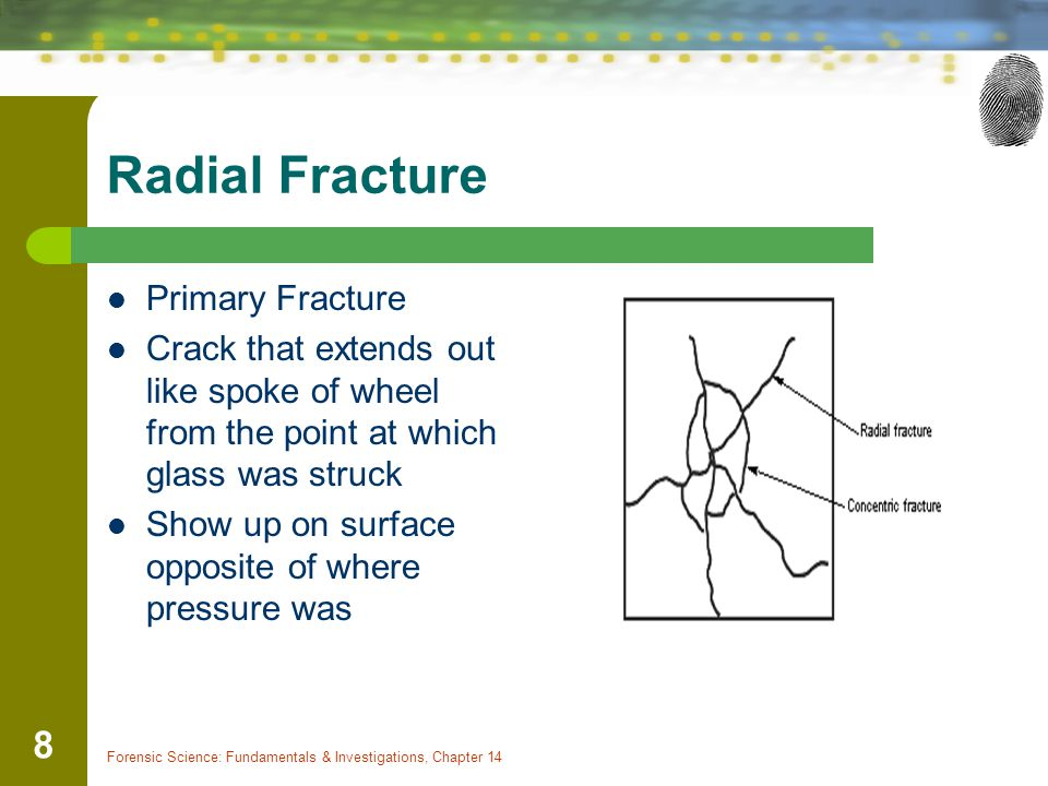 Radial Fracture Primary Fracture