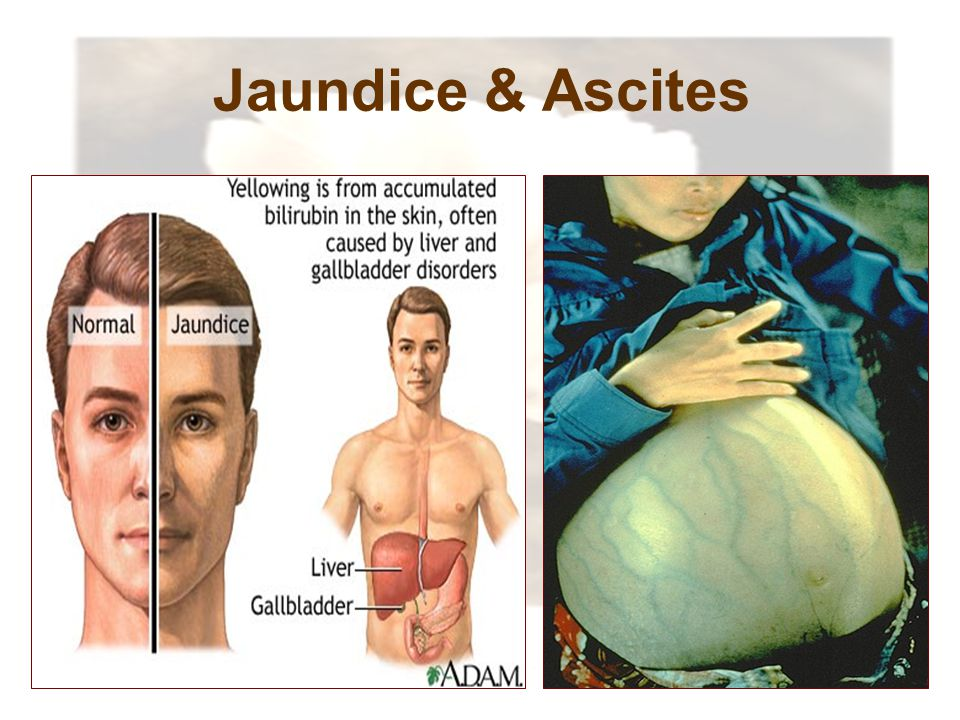 Jaundice & Ascites