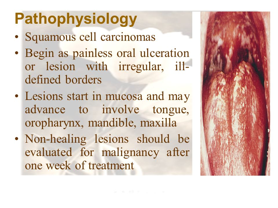 Pathophysiology Squamous cell carcinomas