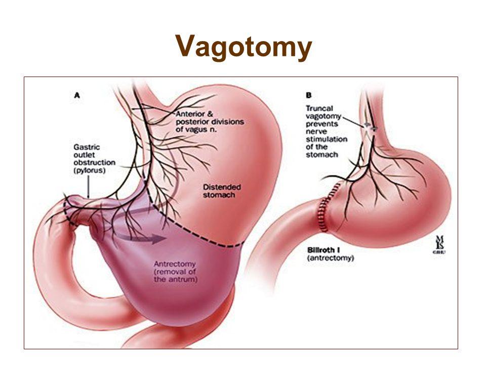 Vagotomy