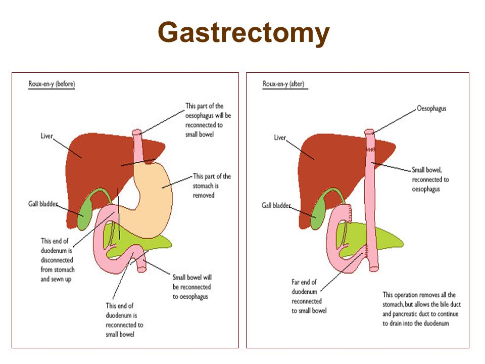 Gastrectomy