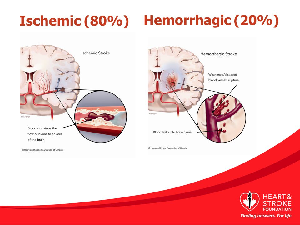 Ischemic (80%) Hemorrhagic (20%)