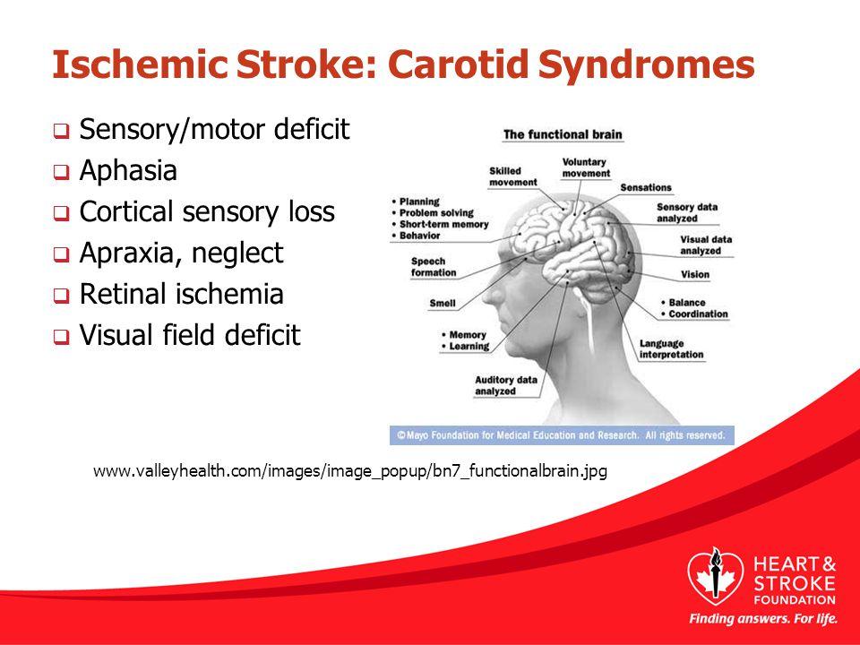 Ischemic Stroke: Carotid Syndromes