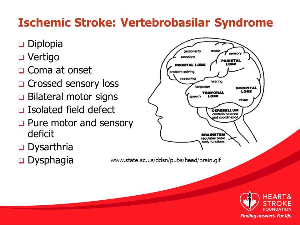 Ischemic Stroke: Vertebrobasilar Syndrome