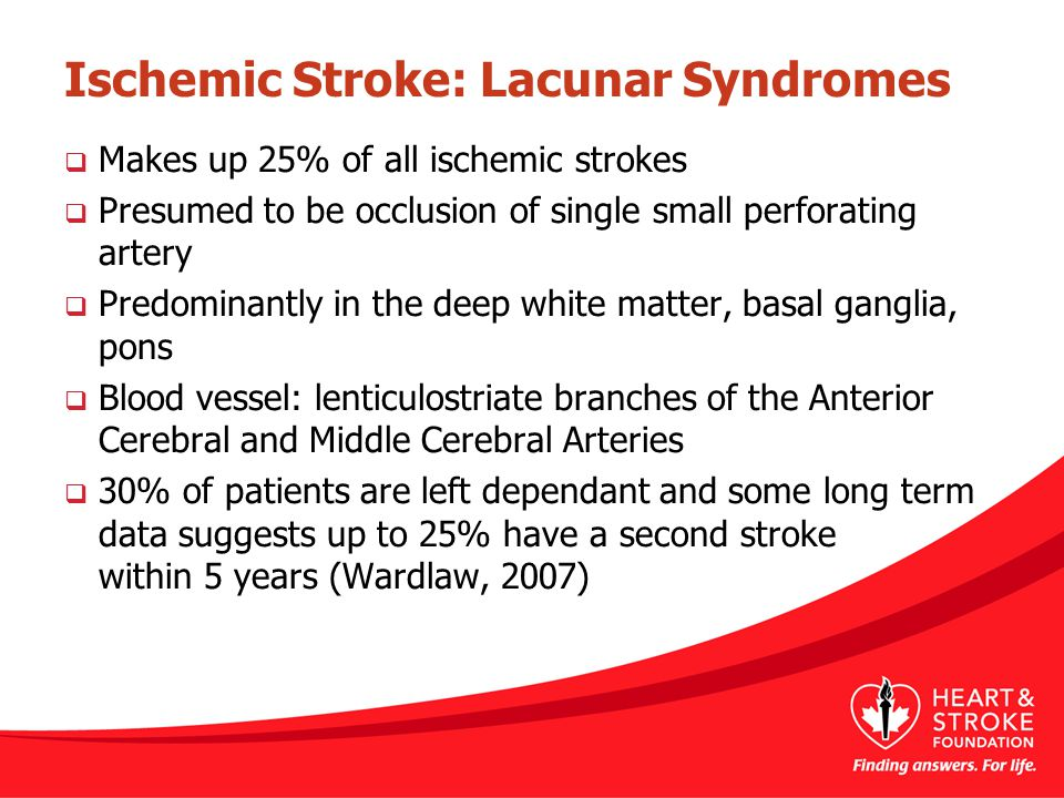 Ischemic Stroke: Lacunar Syndromes