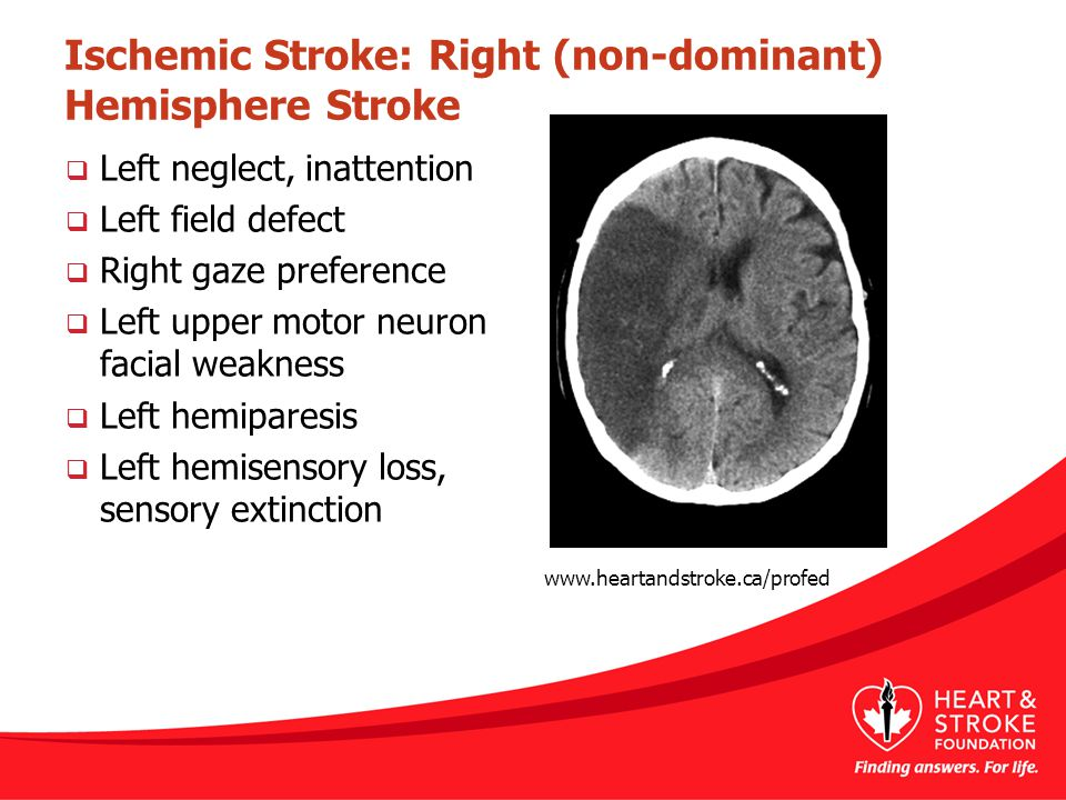 Ischemic Stroke: Right (non-dominant) Hemisphere Stroke