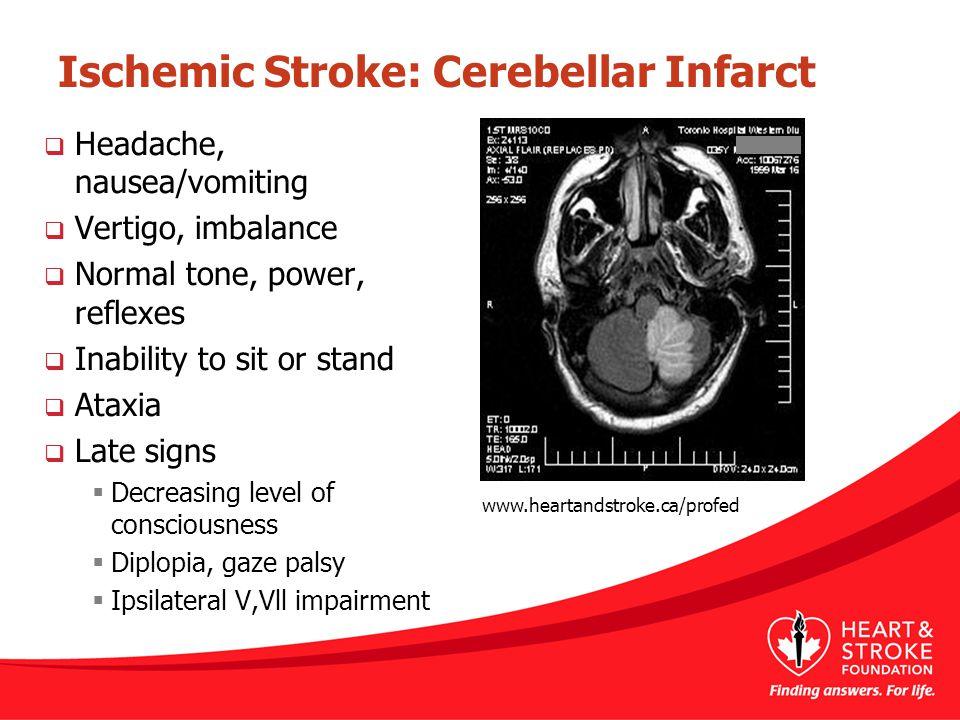 Ischemic Stroke: Cerebellar Infarct