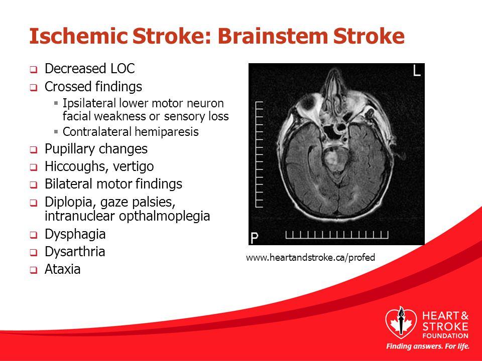 Ischemic Stroke: Brainstem Stroke