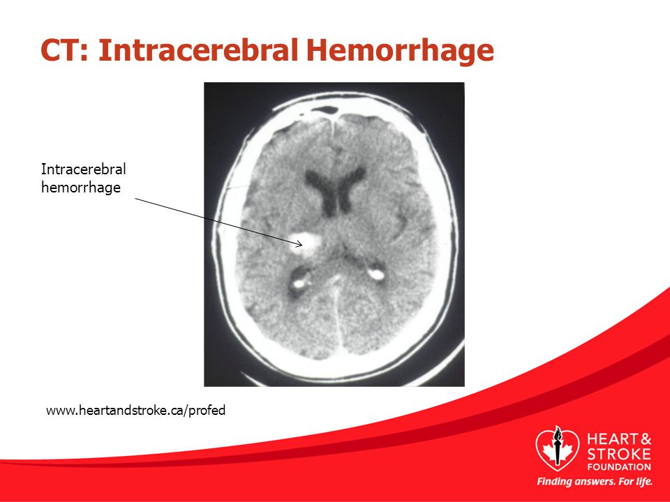 CT: Intracerebral Hemorrhage