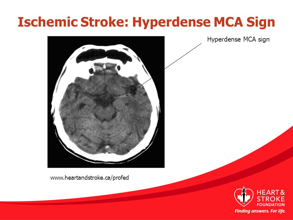 Ischemic Stroke: Hyperdense MCA Sign