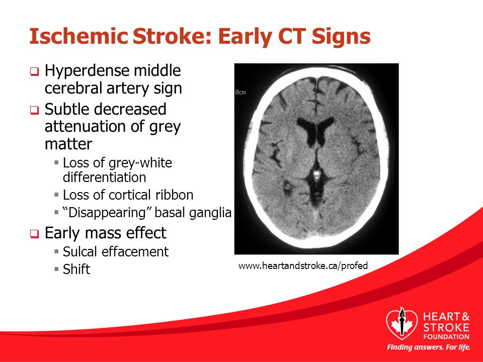 Ischemic Stroke: Early CT Signs