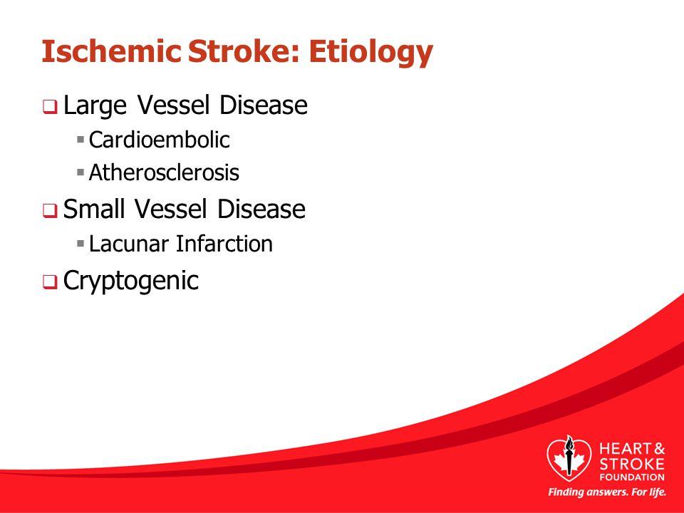 Ischemic Stroke: Etiology