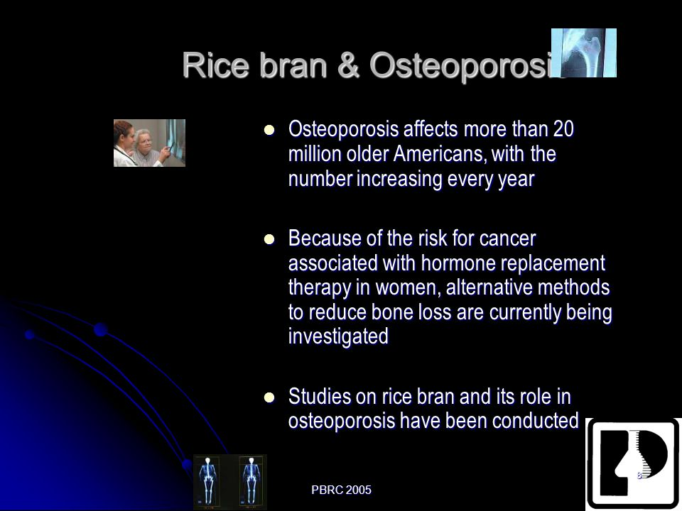 Rice bran & Osteoporosis