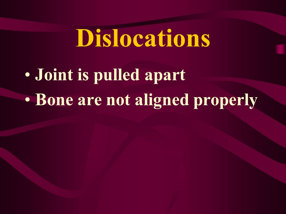 Dislocations Joint is pulled apart Bone are not aligned properly