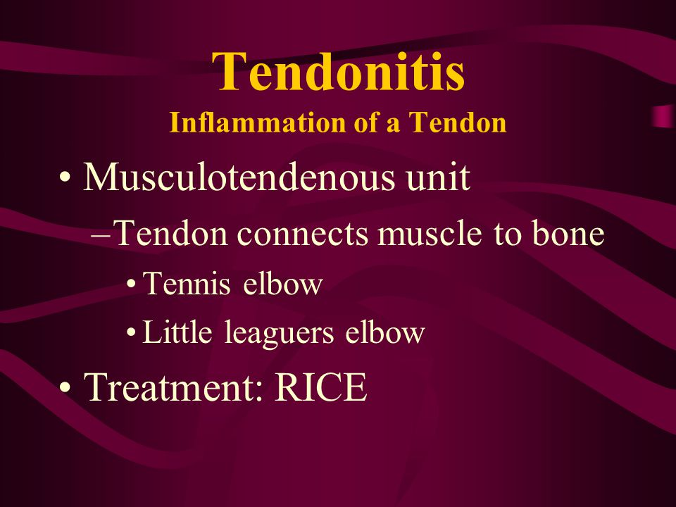 Tendonitis Inflammation of a Tendon