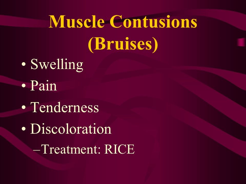 Muscle Contusions (Bruises)