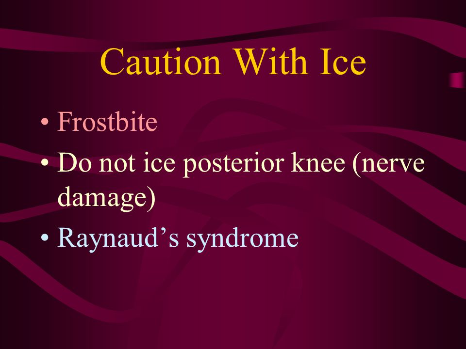 Caution With Ice Frostbite Do not ice posterior knee (nerve damage)