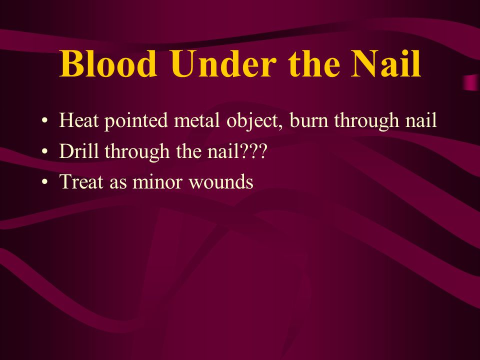 Blood Under the Nail Heat pointed metal object, burn through nail