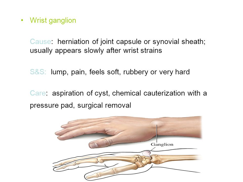 Wrist ganglion Cause: herniation of joint capsule or synovial sheath; usually appears slowly after wrist strains.