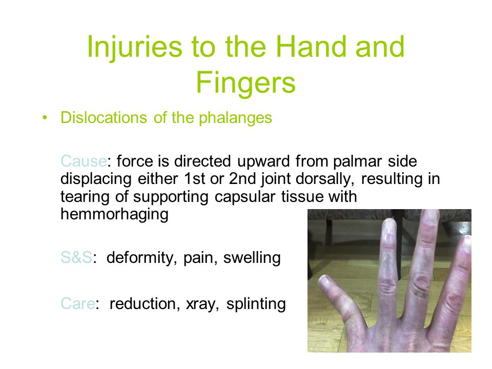 Injuries to the Hand and Fingers
