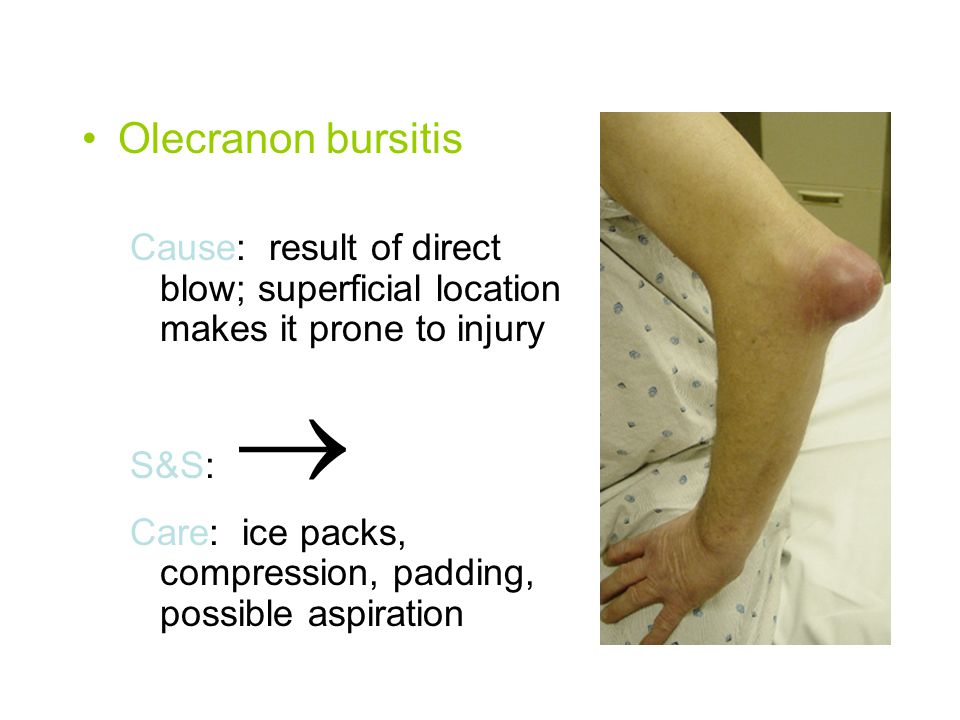 Olecranon bursitis Cause: result of direct blow; superficial location makes it prone to injury. S&S: 