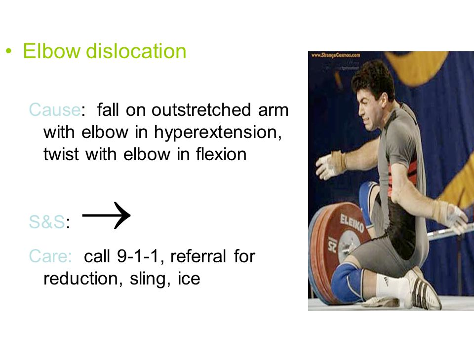 Elbow dislocation Cause: fall on outstretched arm with elbow in hyperextension, twist with elbow in flexion.