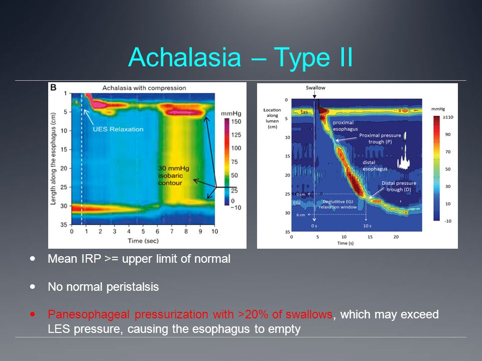 Achalasia – Type II Mean IRP >= upper limit of normal