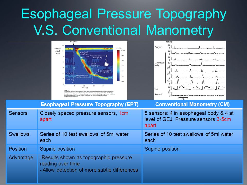 Esophageal Pressure Topography V.S. Conventional Manometry