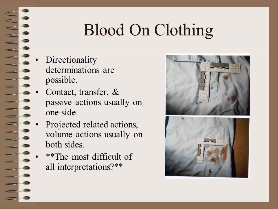 Blood On Clothing Directionality determinations are possible.