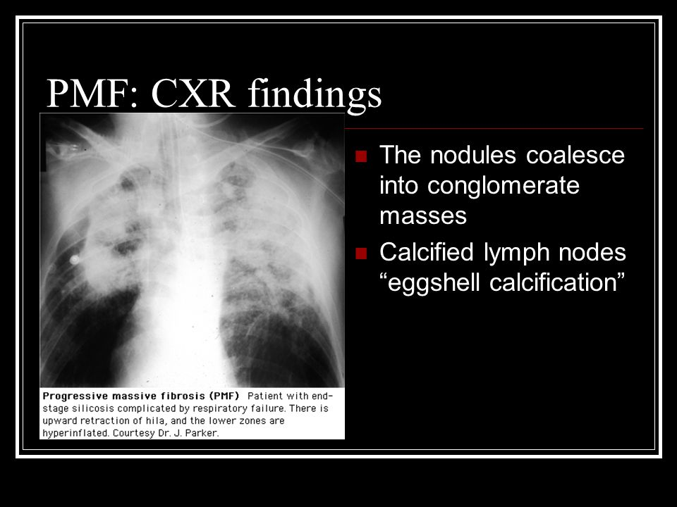 PMF: CXR findings The nodules coalesce into conglomerate masses