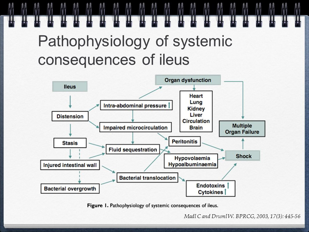 Pathophysiology of systemic consequences of ileus