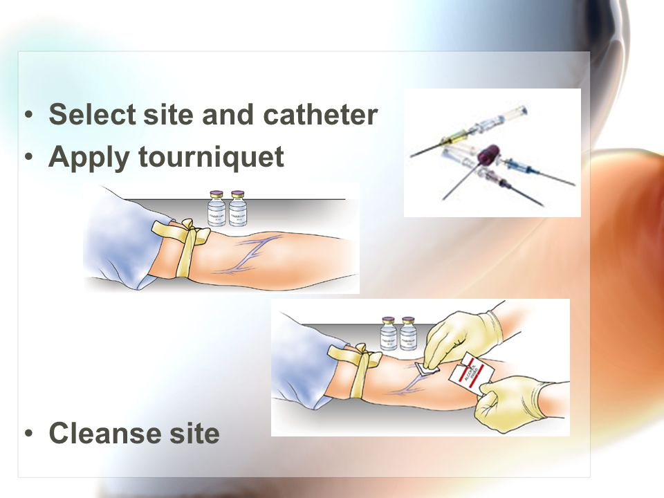 Select site and catheter