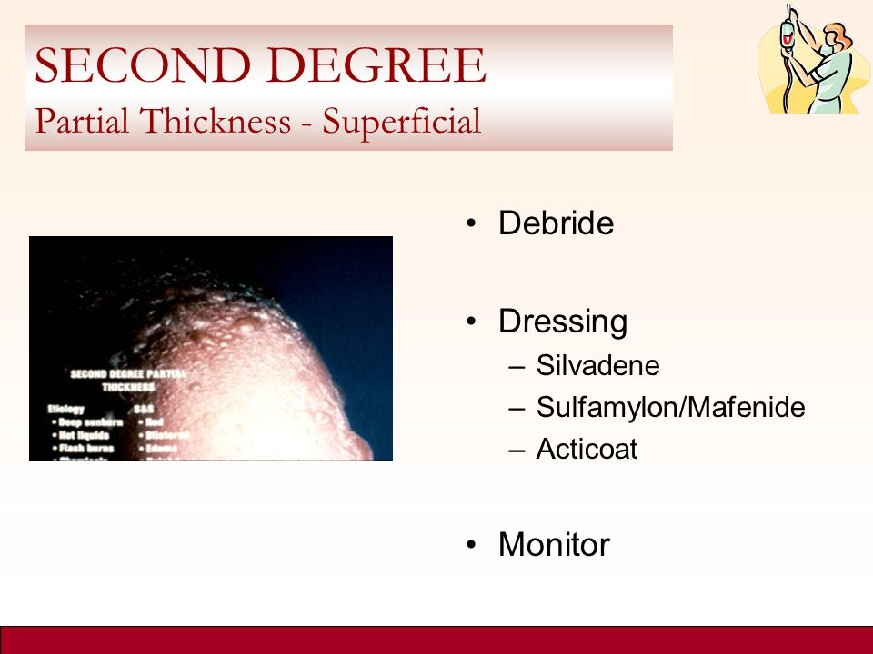 SECOND DEGREE Partial Thickness - Superficial