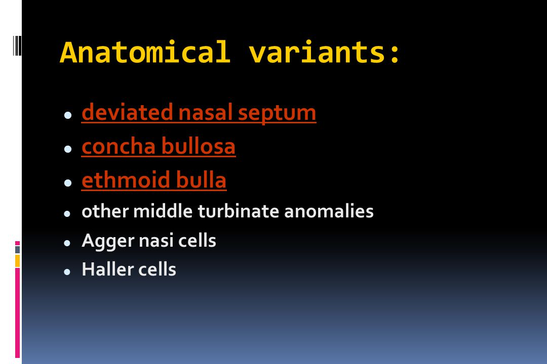 Anatomical variants: deviated nasal septum concha bullosa